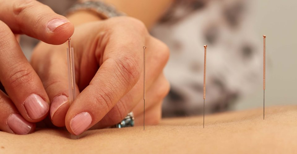 Impact of acupuncture on human health