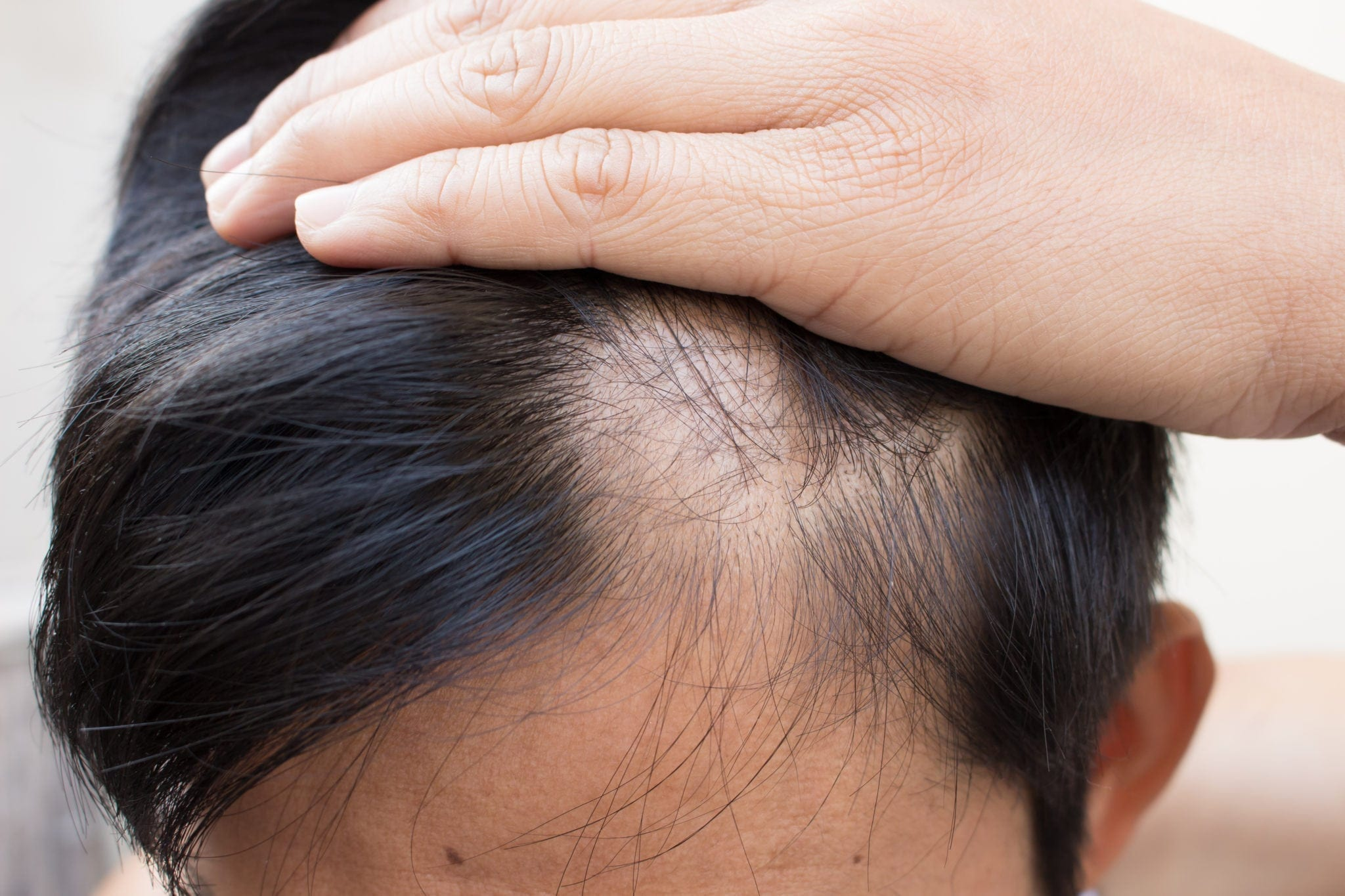 Learn How Hair Loss Shampoo Options